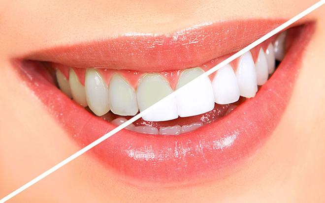 Pratik Diş Beyazlatma Önerileri