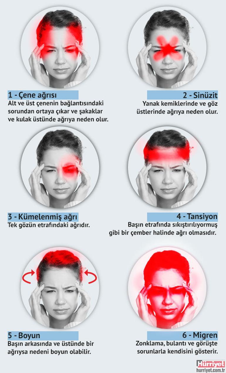 Baş ağrısı tipine göre nedenleri 1