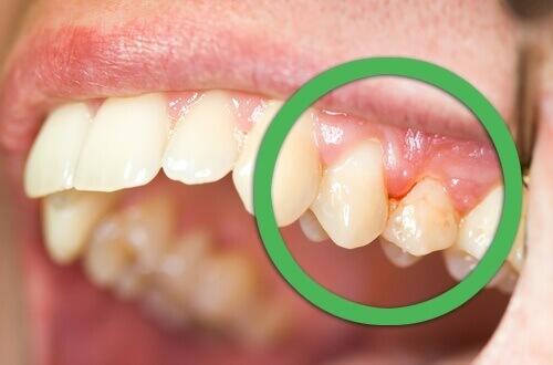 Doğal Dişeti İltihabı Tedavileri