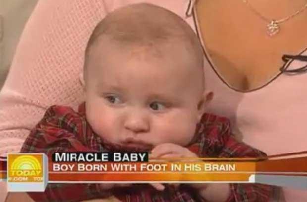 Bebeğin-beyninde-olan-doktorları-şok-etti