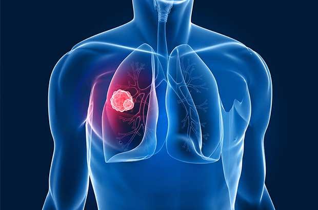 Kanser-türlerine-göre-beslenme-şekli-1