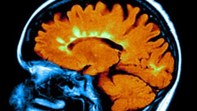 Bu beyin tomografisi MS hastalığının beyinde yol açtığı hasarı (fosfor yeşili bölgeler) gösteriyor