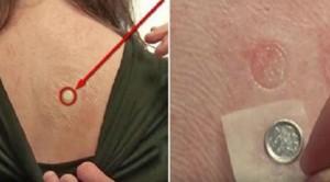 Nikel alerjisi nedir nikel alerjisi nasıl geçer
