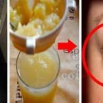 Göz Altı Morlukları ve Şişlikleri İndirir: Patates suyunu kompres şeklinde göz altına uygularsanız göz altındaki halkları ve şişlikleri indirir. Cildi akne ve sivilcelerden arındırır