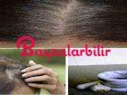 Sarımsak soğan ile beyaz saçlara doğal çözüm