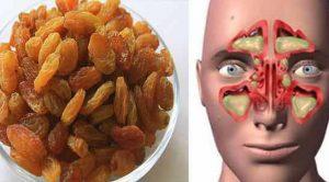 Zencefil üzüm ile sinüzit tedavisi