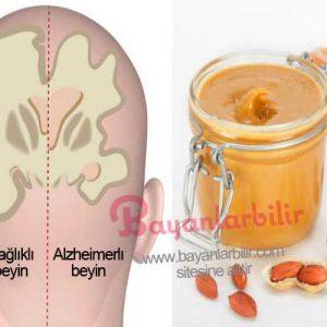 Fıstık ezmesi ile Alzheimer hastalığını erken teşhis etmek