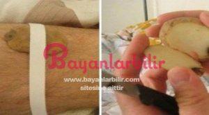 Patates dilimini cilde koymak patatesin cilde faydası