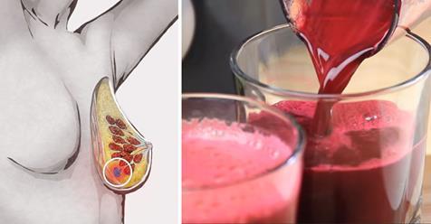 Kanseri önleyen detoks suyu için tıklayın