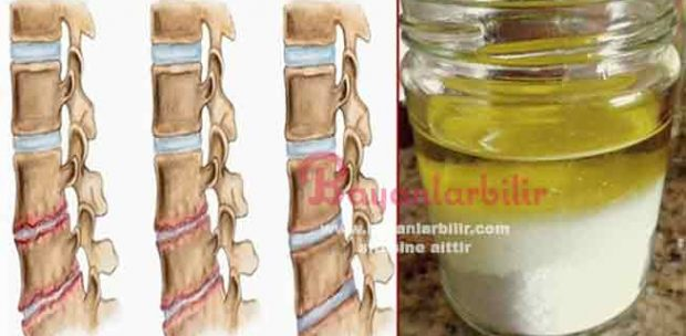 Eklem ağrısına zeytinyağı ve tuz tedavisi