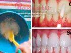 Limon karbonat ve muz kabuğu ile doğal diş beyazlatma yöntemi