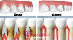 Diş eti çekilmesine bitkisel tedavi yöntemleri