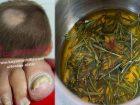 Sarımsak biberiye ile Mantar tedavisi nasıl yapılır