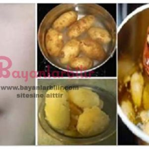 Haşlanmış patates ile cilt beyazlatma yöntemi