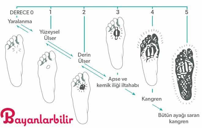 Siyah fasulye ile Diyabetik ayak tedavisi nasıl yapılır