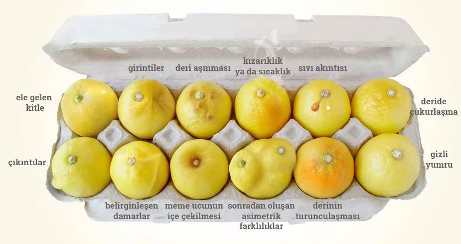 Limonla göğüs kanseri testi nasıl yapılır