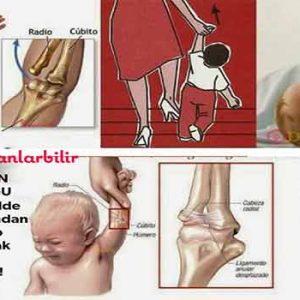 Çocuğu kolundan tutup çekmek zararlı mı