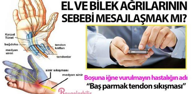 Baş parmak tendon sıkışması Tenosinoviti hastalığı