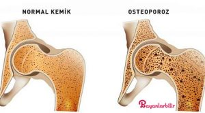Kemik Yoğunluğunu Artırmanın ve Sağlıklı Kemiklere sahip olmanın Yolu (Osteoporoz Diyeti Dahil)