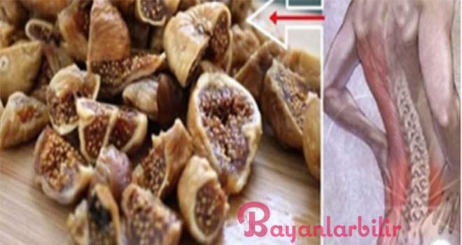 Bel fıtığı ve bel ağrısını geçiren incir yöntemi
