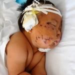 Çin'de bir hemşire (Malesef sağlık personeli) 8 aylık bebeği tarafından emzirirken memesini ısırdığı gerekçesiyle makas ile 90 yerinde kesikler attı. Haberin diğer fotoğrafları için görsele tıklayın