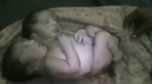 Çift başlı bebek görenleri şoke etti