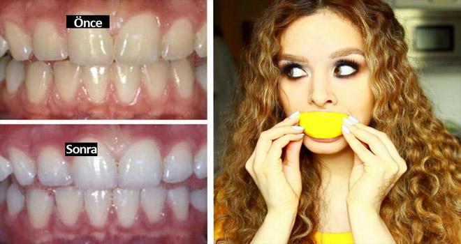 dişleri beyazlatmak
