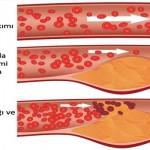 Kabartma tozu ile kolesterolü düşürmek, damarları temizlemek mümkün.Modern dünyanın ve yaşam tarzının etkisi ile ya da genetik olarak damarlarınızda kötü kolesterol miktarı arttı ise size kabartma tozu ile hazırlanan bu karışımı öneriyoruz. Unutmayın kanda kötü kolesterolün miktarı 4.60 ve 6.20 mg / L arasındadır.