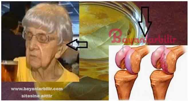 Eklem ağrılarını geçiren aspirin alkol iyot karışımı