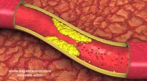 40 günde kolesterolü damarlarınızdan silin