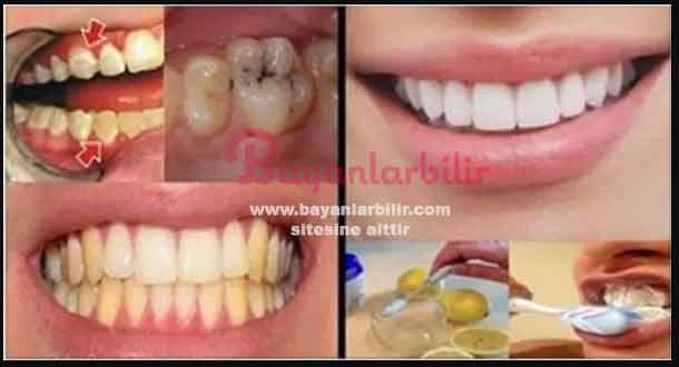 Diş tartarı bitkisel çözüm Diş sararması nasıl geçer