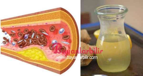 Limon bal sarımsak zencefil su ile Kolesterol ve Hipertansiyon için Doğal Çözüm