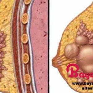 Göğüs kistine doğal tedavi yöntemi