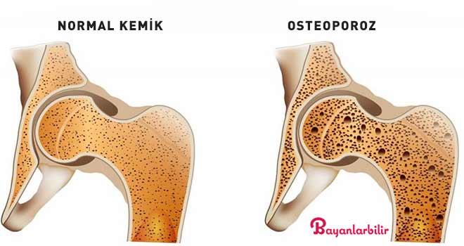 Kemik Yoğunluğunu Artırmanın ve Sağlıklı Kemikler İnşa Etmenin Kanıta Dayalı Yolları (Osteoporoz Diyeti Dahil)