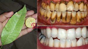 Doğal yollarla Karbonat limon karışımı diş beyazlatma yöntemi